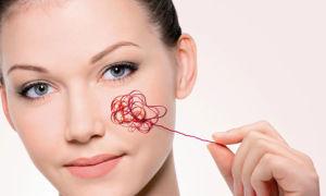 Виды косметики от купероза на лице и другие способы ухода