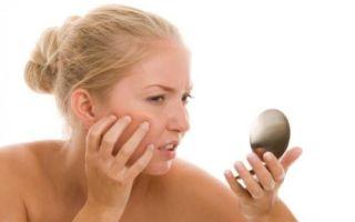 Секреты ухода за чувствительной кожей лица