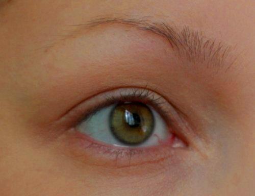 выпадение волосков из бровей
