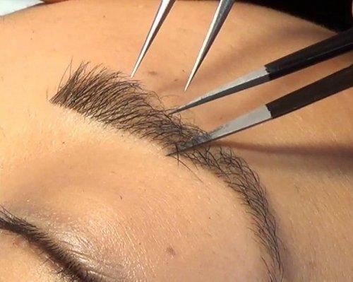 процедура добавления волосков